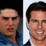 Tom Cruise before & after