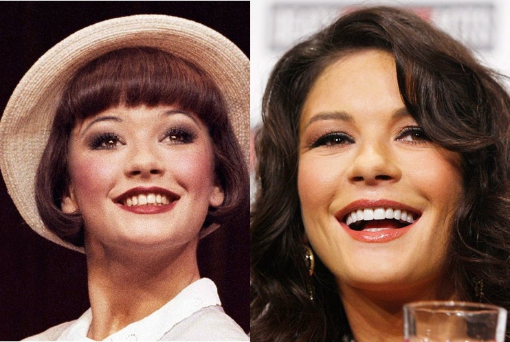 celebrity smiles before after