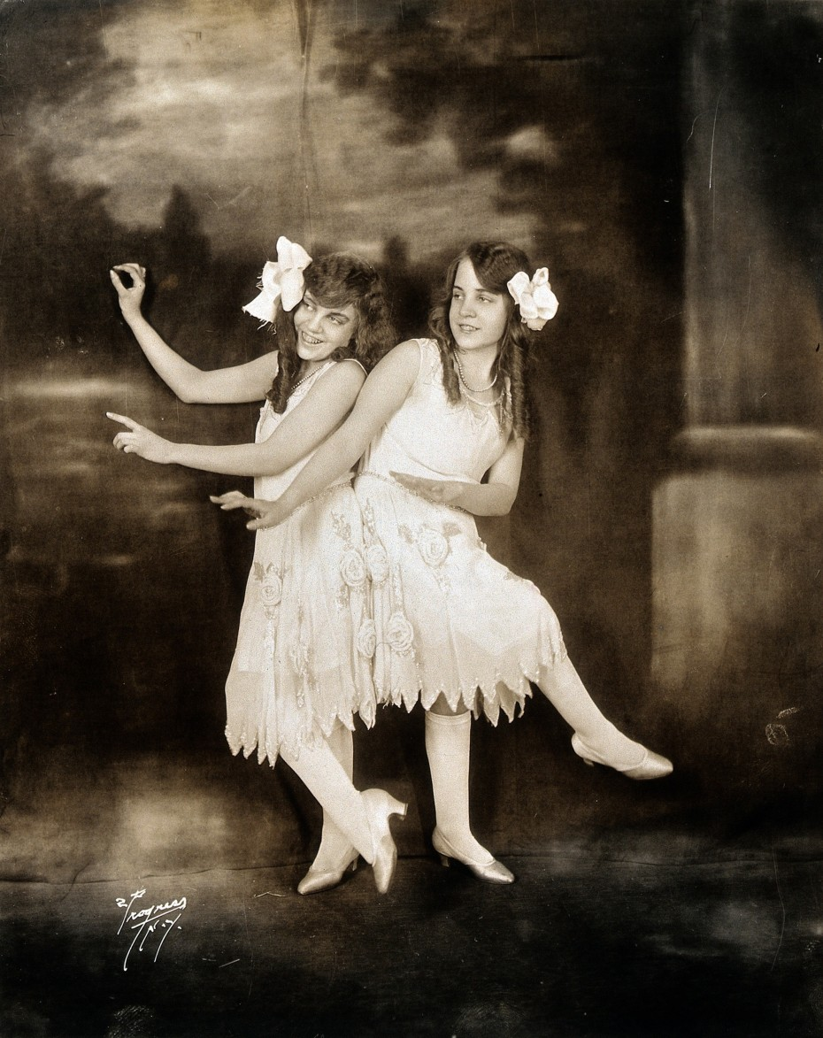 V0029594 Daisy and Violet Hilton, conjoined twins, dancing. Photograp Credit: Wellcome Library, London. Wellcome Images images@wellcome.ac.uk http://wellcomeimages.org Daisy and Violet Hilton, conjoined twins, dancing. Photograph, c. 1927. 1930 Published:  -  Copyrighted work available under Creative Commons Attribution only licence CC BY 4.0 http://creativecommons.org/licenses/by/4.0/